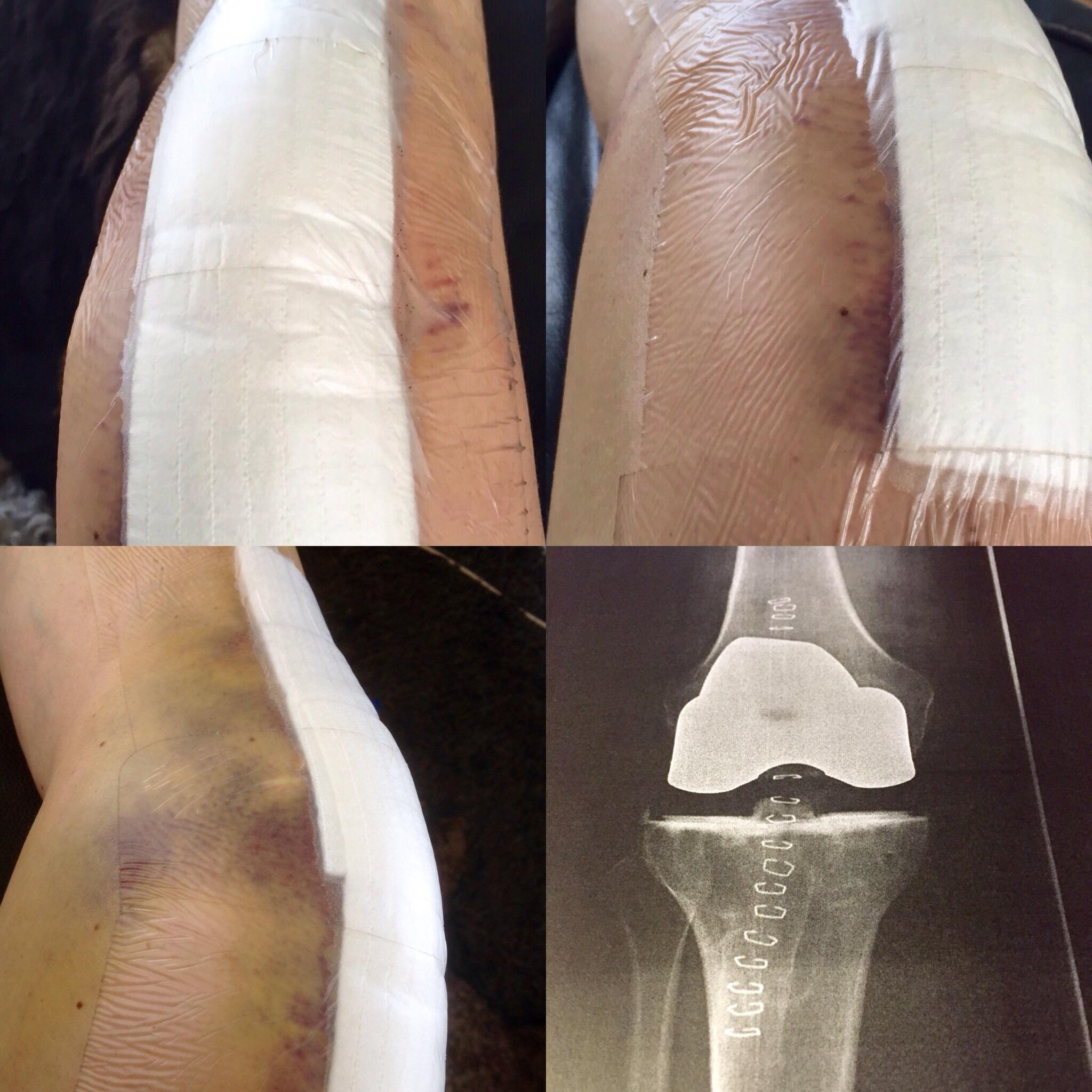 smärta efter knäoperation
